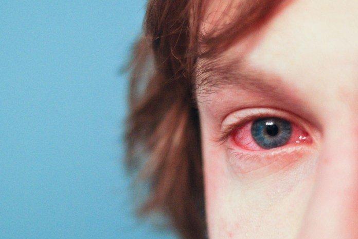 Воспаление слизистых