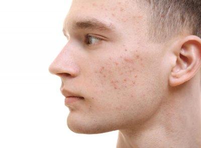 Акне вульгарис: причины, симптомы и лечение
