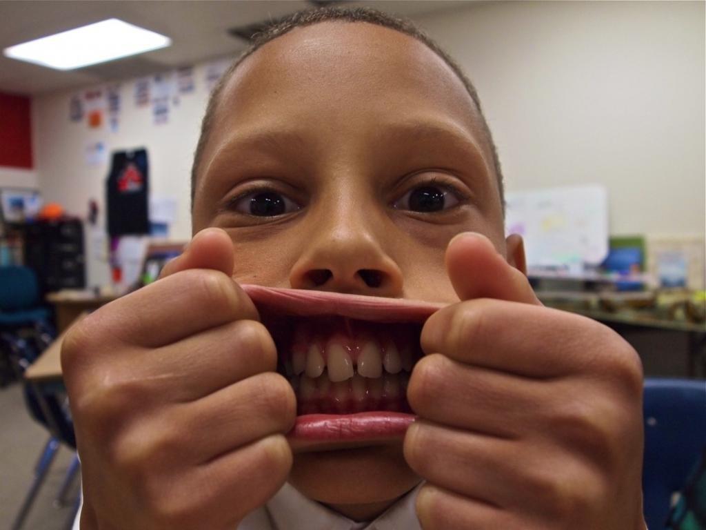 Большие губы