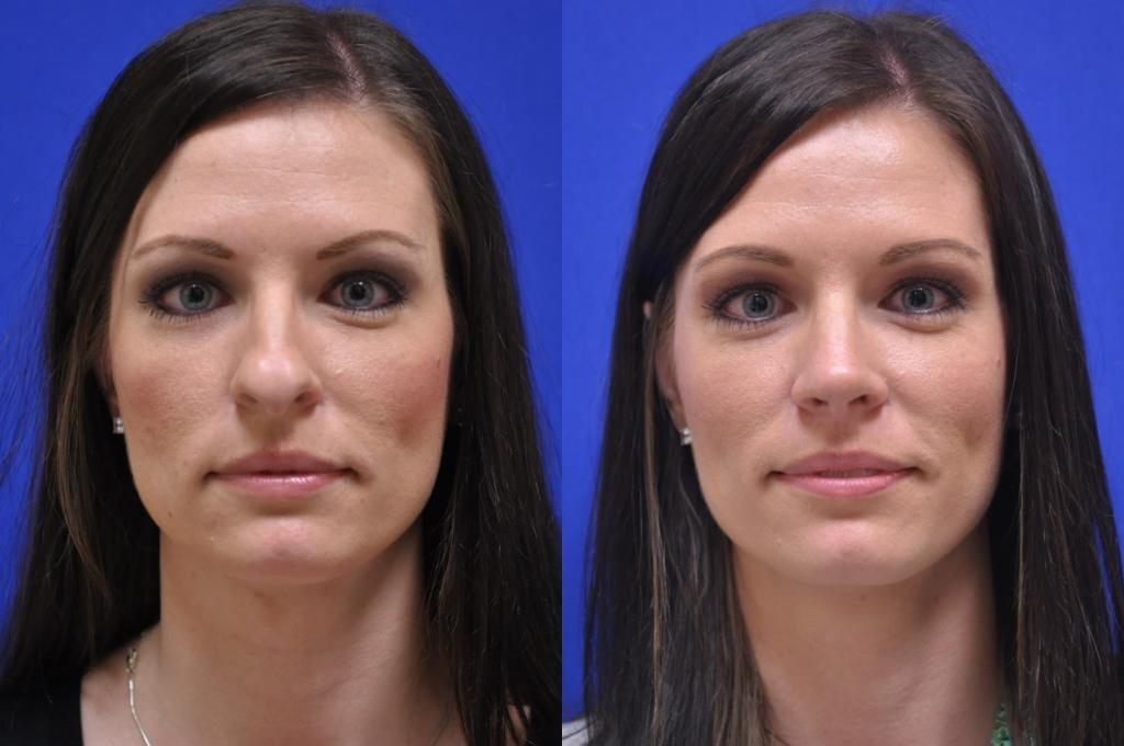 как выглядит лицо после коррекции асимметрии