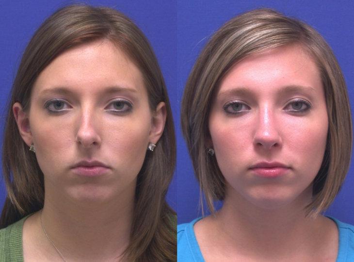 фото до и после косметологических процедур