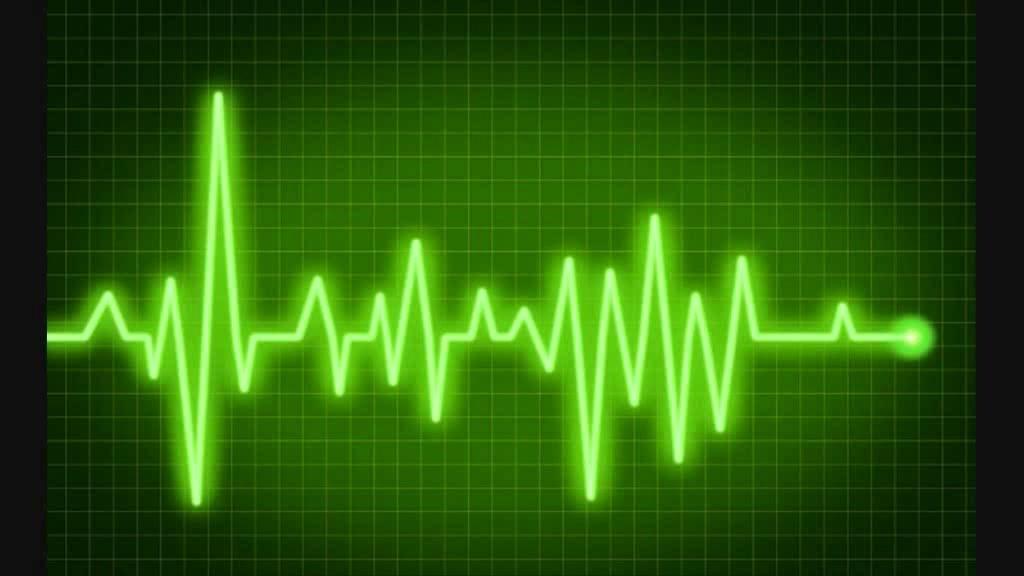 Изображение электрокардиограммы