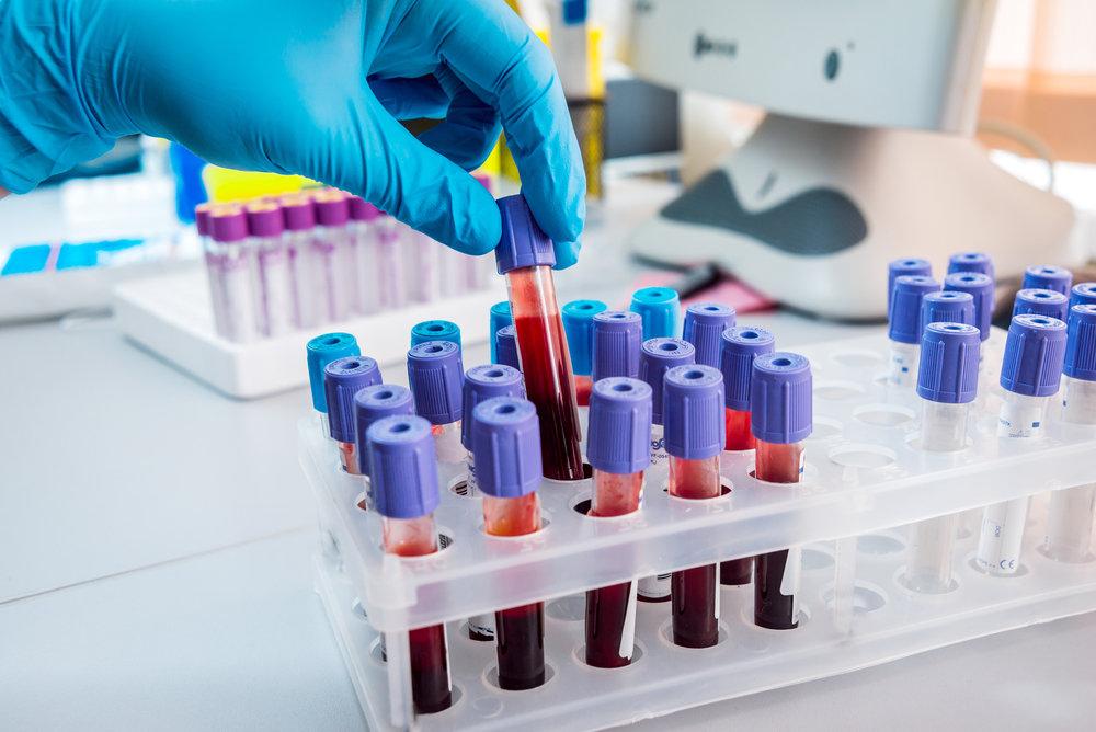 Кровь для исследований