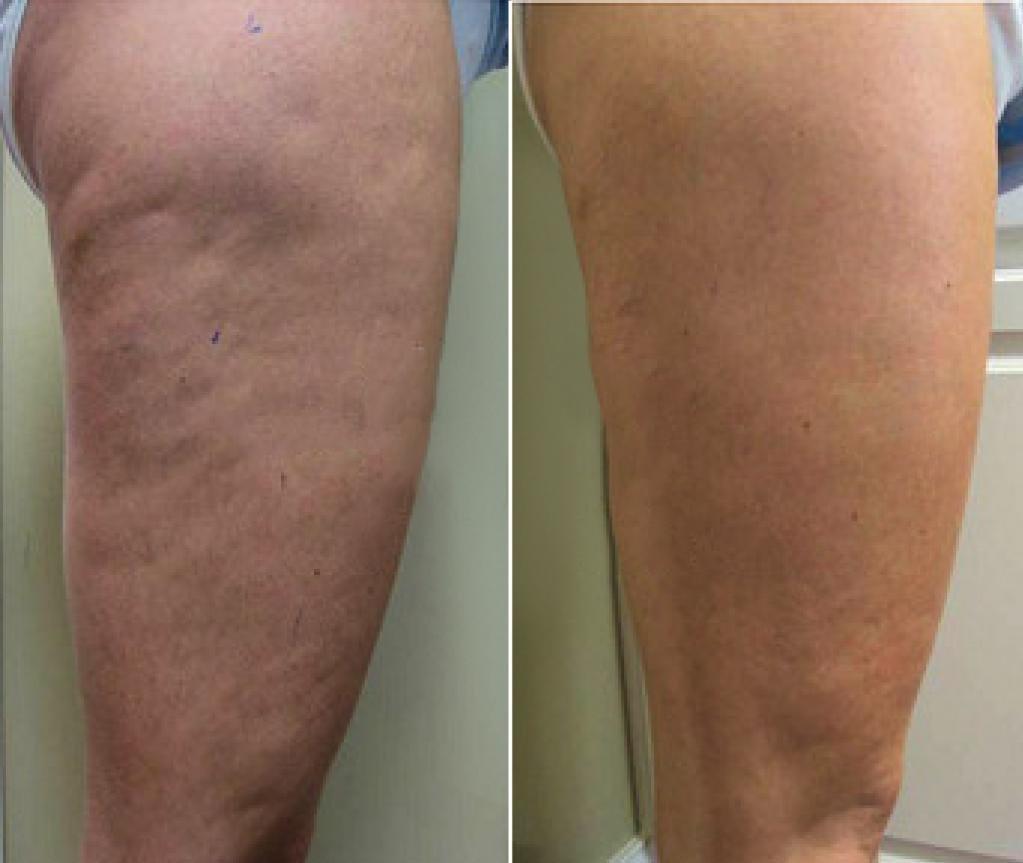 антицеллюлитный массаж до и после