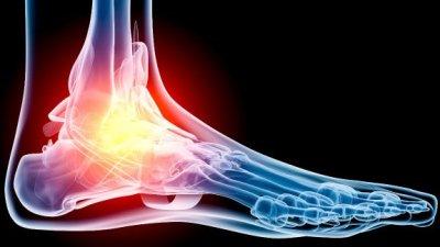 Растяжение связок стопы: причины, симптомы и лечение