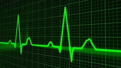 Дополнительное отведение ЭКГ и основные показатели работы сердца - новинки в опционе фитнес-браслетов