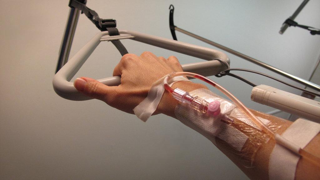 Рука с введенным катетером от капельницы