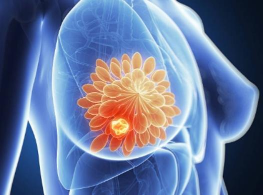 «Тамоксифен» при раке молочной железы