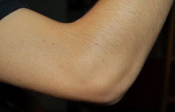 анатомия локтевого сустава человека