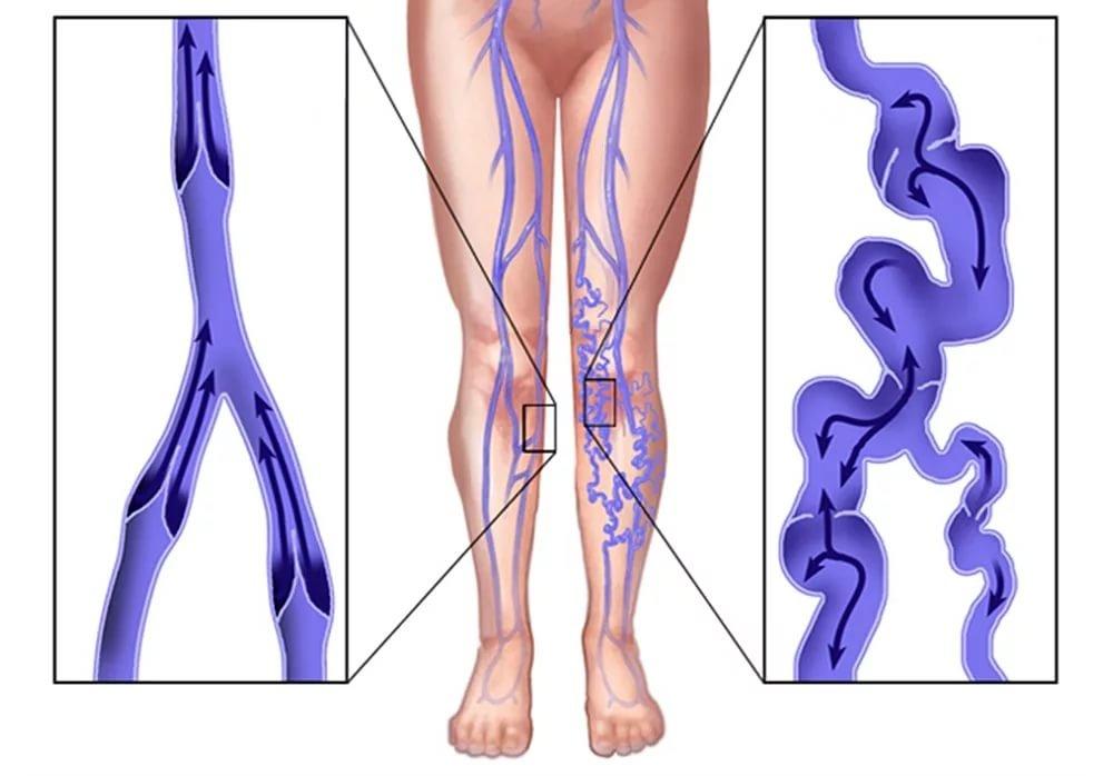 Нормальные и поврежденные вены