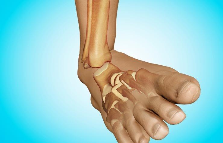 Вывих кости голеностопа