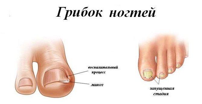 как выглядит грибок на коже пальцев