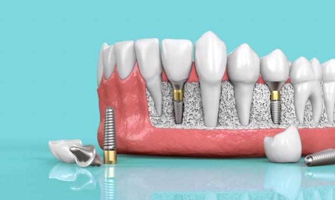 Несколько зубов