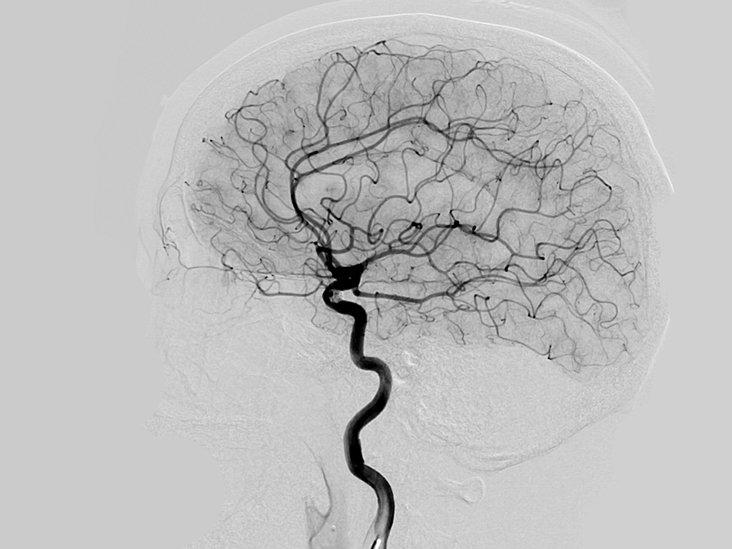 Ангиограмма головного мозга