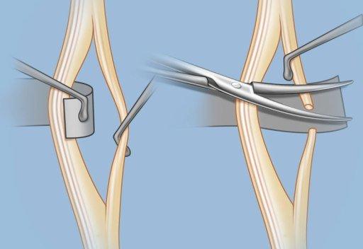 Хирургическое вмешательство при спастике мышц