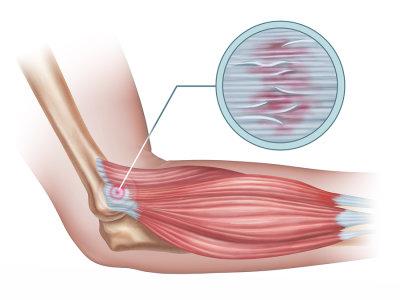 Эпикондилит локтевого сустава: симптомы и лечение, профилактика
