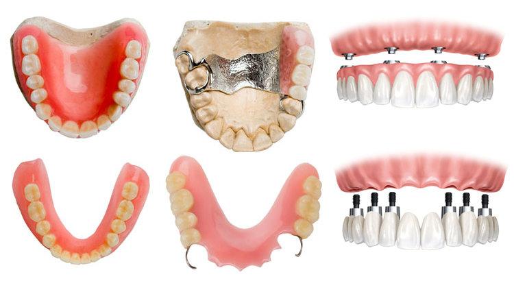 протезирование зубов полными съемными пластиночными протезами