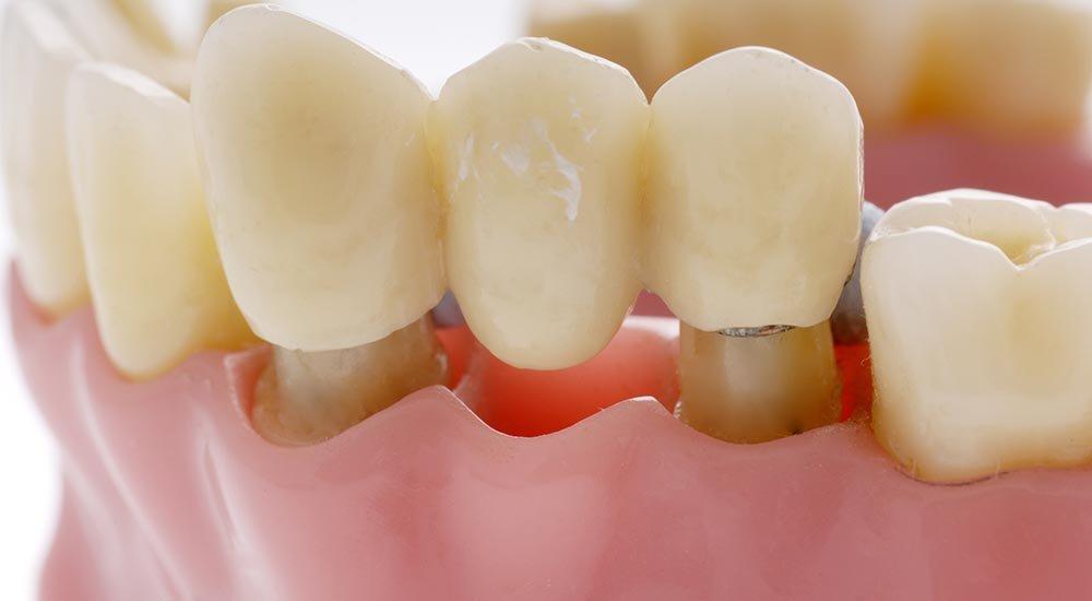 Мост при отсутствии зуба