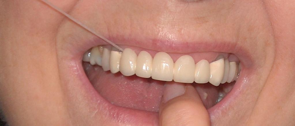 Восстановление переднего верхнего зубного ряда