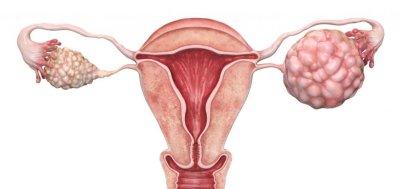 Лечение рака яичников: обзор методов, прогнозы