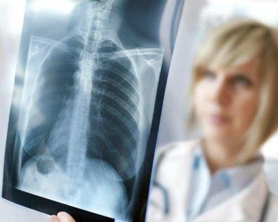 Видно ли рак легких на флюорографии: что показывает снимок