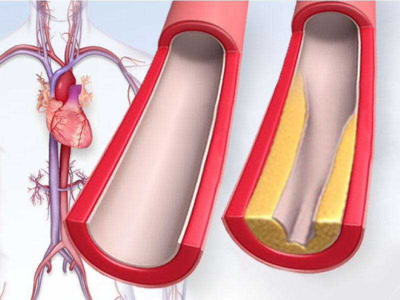 как снизить холестерин крови