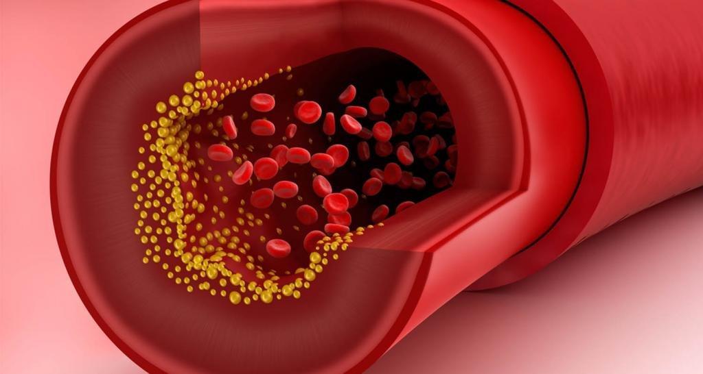снизить уровень холестерина крови