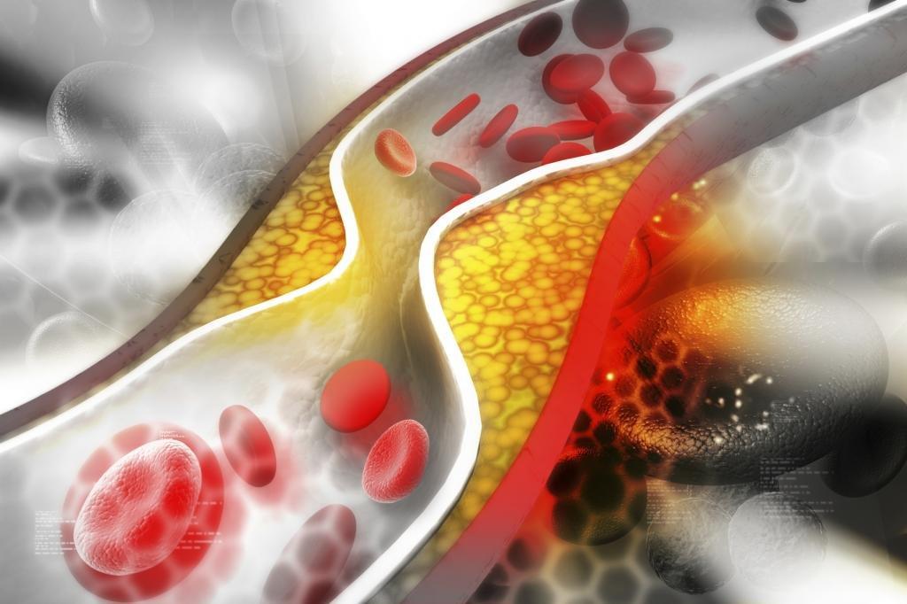 как понизить уровень холестерина