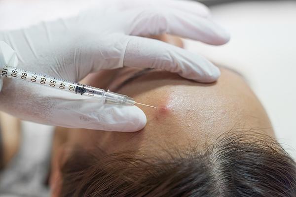 Лечение акне от стероидов