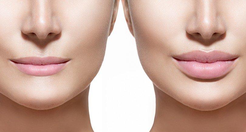 филлеры для губ