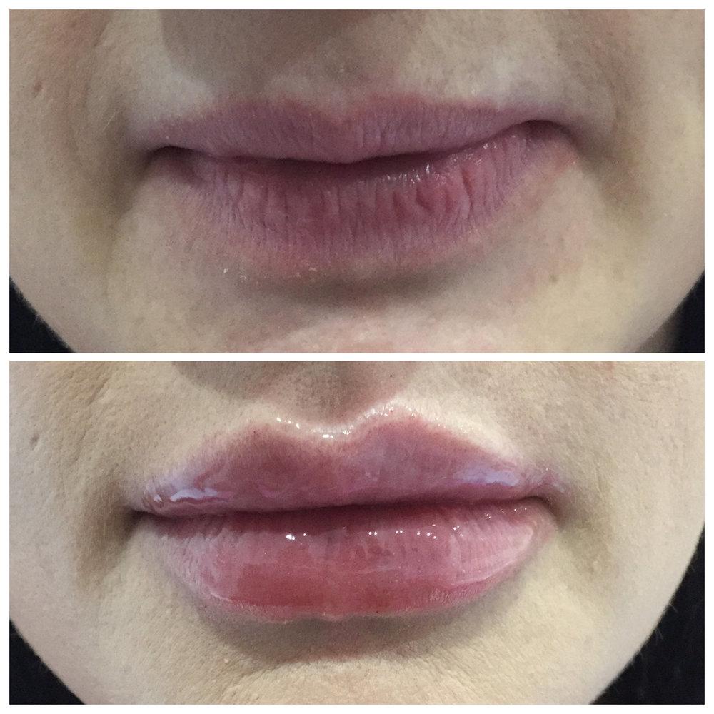 увеличение губы с помощью макияжа