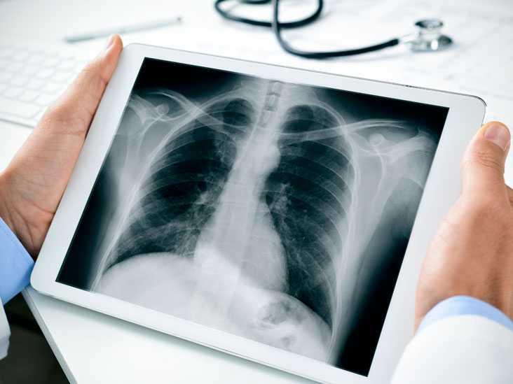 Как часто можно делать рентген без вреда